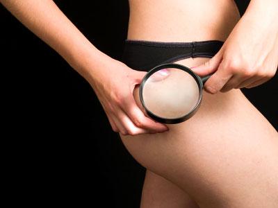 La verità sui trattamenti anti-cellulite
