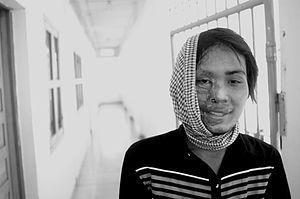 Donne sfigurate dall'acido dimenticate dalla comunità.