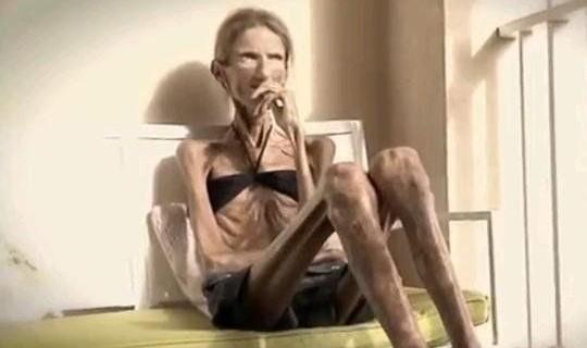 Valeria Levitina, la donna più anoressica del mondo [VIDEO]