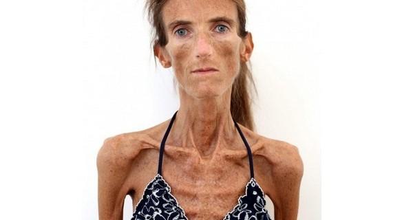 donna-piu-anoressica