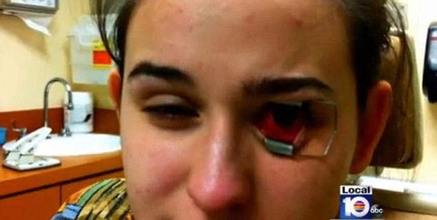 Lenti a contatto sporche: rischia la cecità [VIDEO]