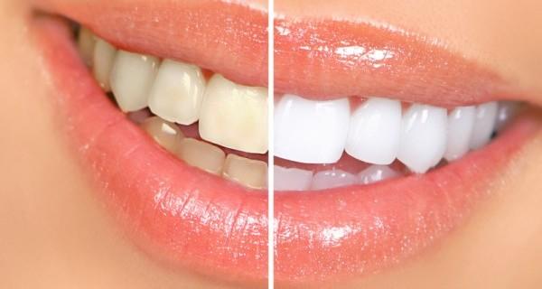 5 Metodi Per Sbiancare I Denti in modo Naturale Ed Economico