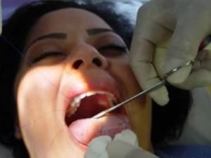 Cerotto cucito sulla lingua per dimagrire: ecco il metodo di un chirurgo plastico
