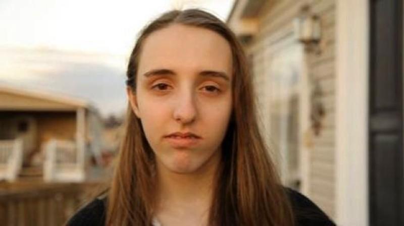 Vittima di bullismo per le dimensioni del naso: un'associazione le regala l'operazione