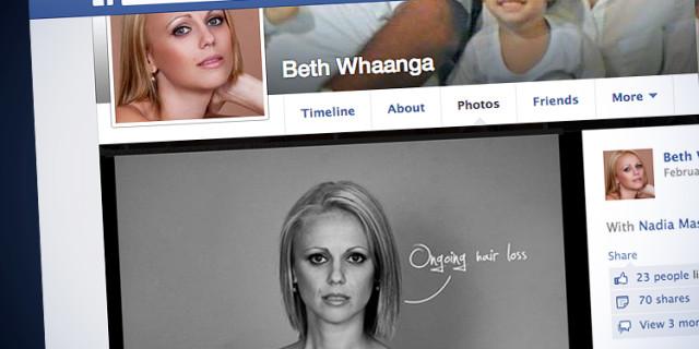 Posa nuda su Facebook mostrando le cicatrici del cancro: perde oltre 100 amici