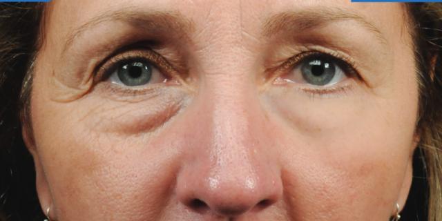 Strateris: lo scotch di bellezza che elimina rughe e borse sotto gli occhi