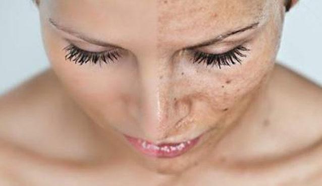 eliminare macchie scure viso