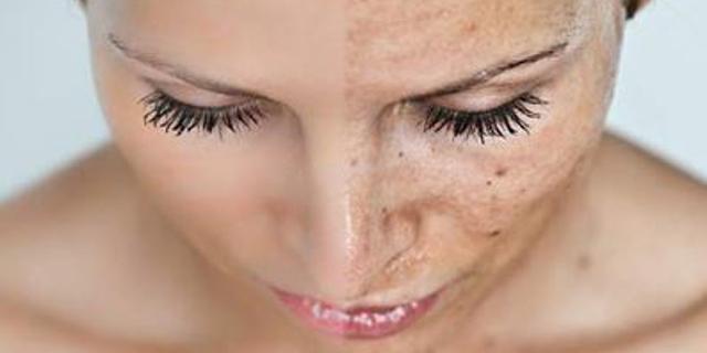 Cosmetici di salute siberiani che candeggiano creme