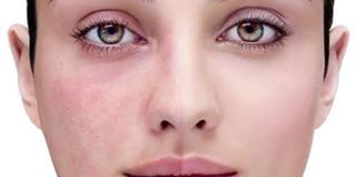 make up couperose