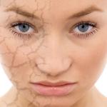 Pelle Secca? Ecco 10 Consigli Per Idratare la Pelle In Modo Naturale