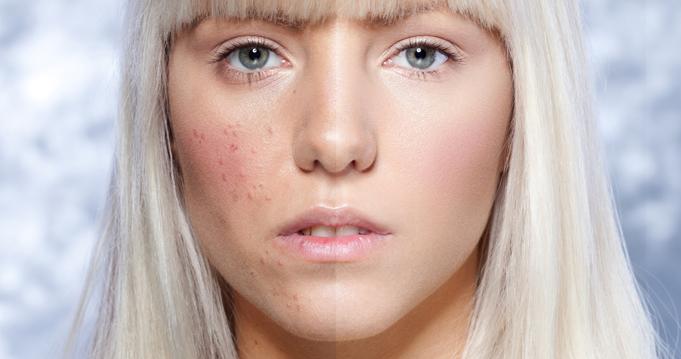 Crema da posti sulla faccia