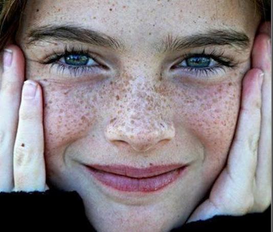 La crema o lunguento da pigmentary notano su un corpo