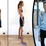 Incubo Anoressia: 10 Scioccanti Fotografie