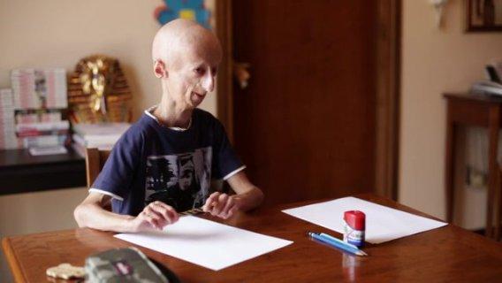 Sammy Basso, Una Nuova Avventura Per Vivere Nonostante la Progeria