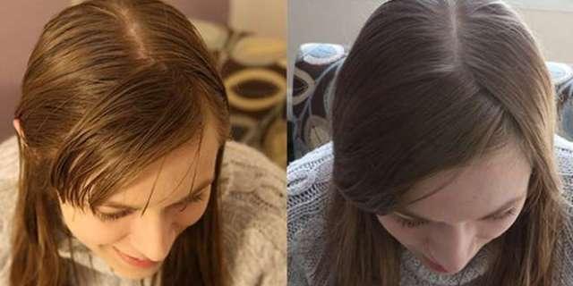 Lavarsi i Capelli Con il Bicarbonato: La Nuova Tendenza di Bellezza