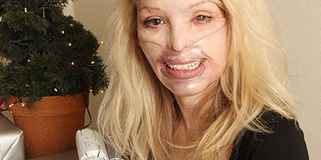 Sfigurata dall'Ex: La Modella è diventata Madre e Torna a Sorridere