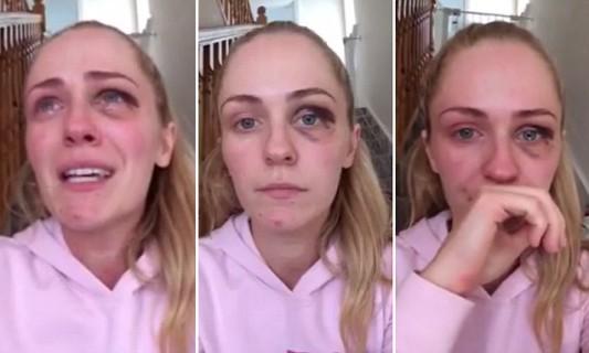 """""""Era l'Amore della mia Vita"""": il Video Shock di Emma per dire No alla Violenza Domestica"""