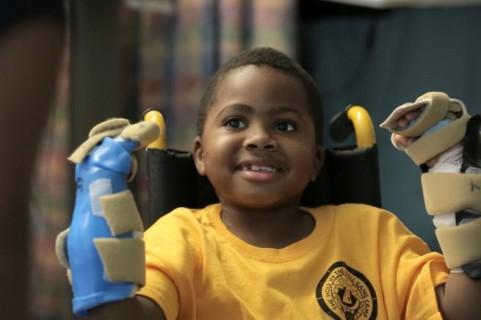 Miracoloso Trapianto di Mani su un Bambino di 8 Anni: è il Primo al Mondo