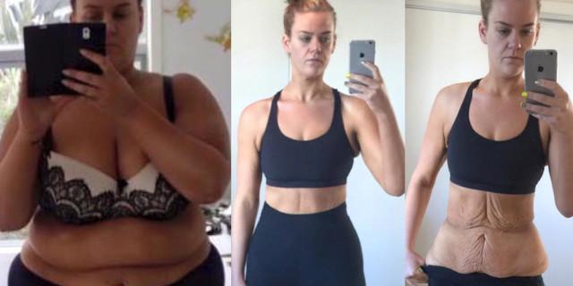 Perde 90 kg e Nessuno le Crede: Pubblica le Foto Shock su Instagram