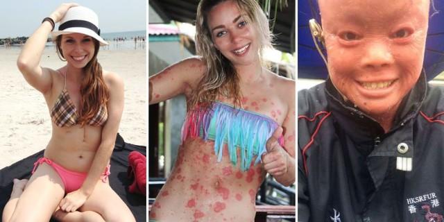 La Malattia Non le Ferma: #NoMakeup, la Vera Bellezza va oltre il Trucco