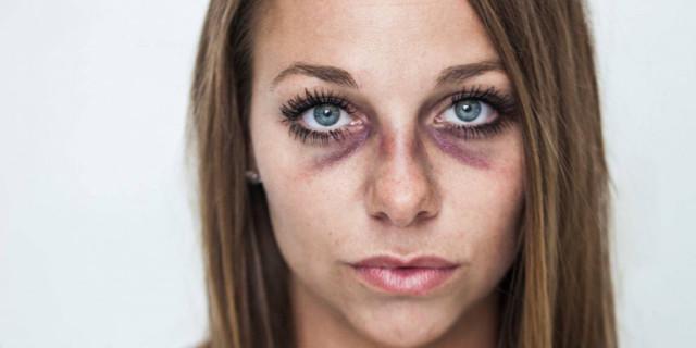 Picchiata dal Fidanzato Posta le Foto dei Lividi su Facebook per Denunciare la Violenza
