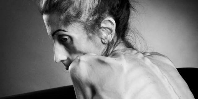 """Rachael Farrokh e la sua lotta contro l'anoressia: """"ora voglio aiutare gli altri"""""""