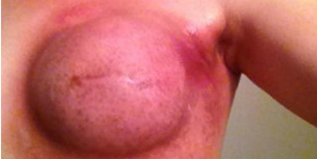 jenn alter cancro al seno