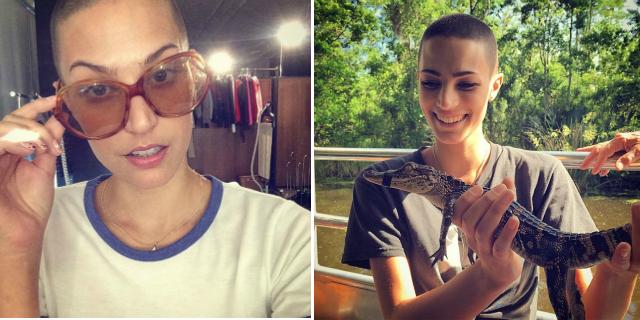 Dayna, Sogna di Fare la Modella e il Cancro non la Ferma: Ecco la sua Storia