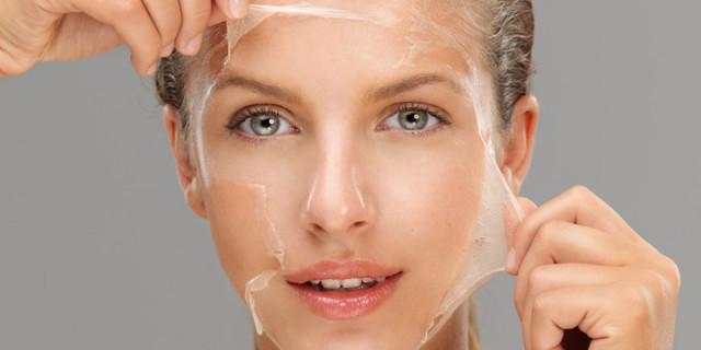 Peeling Chimico: ecco ciò che Dovresti Sapere Prima di Provarlo