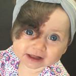 """La Piccola Ruby e la Sua Enorme """"Voglia"""" sul Viso che Richiederà 7 Interventi Chirurgici"""