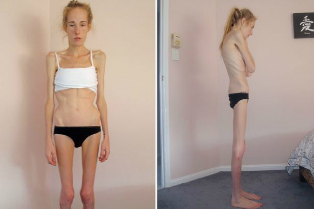 gemma walker anoressia