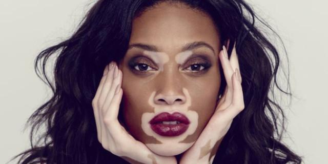 10 Donne Straordinarie che Dimostrano che La Vera Bellezza Non ha Confini