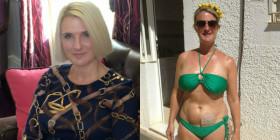 Suzanne: Sconfigge il Cancro e con Coraggio Aiuta Altre Donne nella Sua Situazione
