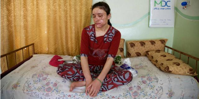 Lamiya Aji Bashar sfregiata isis