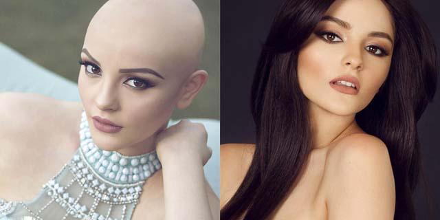 """Lei ha soli 17 anni: """"il cancro non mi impedisce di essere una principessa"""""""