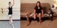 Ballerina di 15 anni, amputata, si fa riapplicare il piede al contrario per poter continuare a danzare