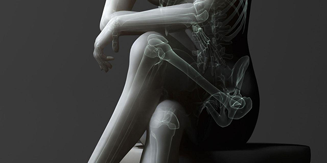 Gambe incrociate radiografia