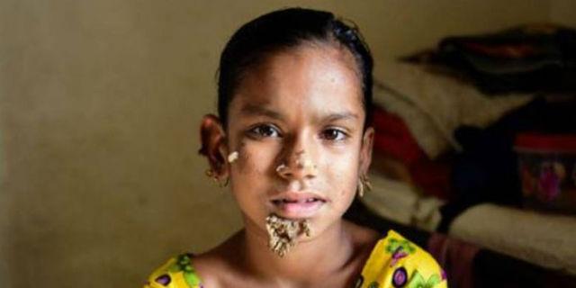 Il dramma di Sahana, la bambina con una delle malattie più rare al Mondo