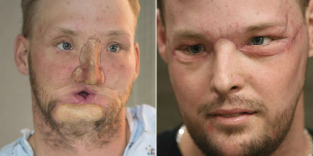 Tentò di uccidersi sparandosi, 10 anni dopo riceve il trapianto di faccia