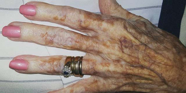 Anziane
