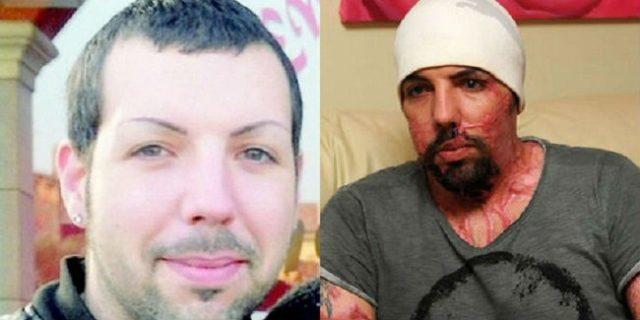 """William Pezzulo, sfigurato con l'acido dalla ex: """"La violenza non ha sesso"""""""