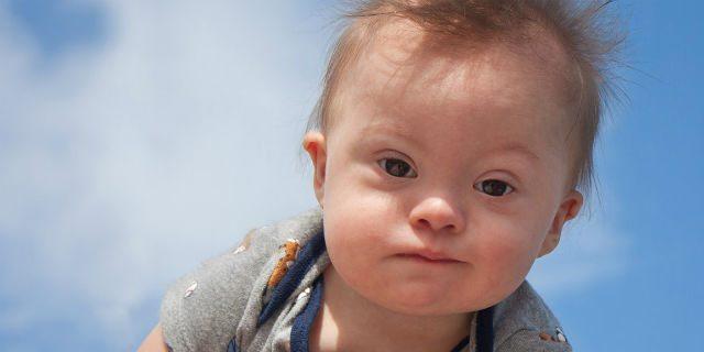 Il paese in cui stanno scomparendo i bambini affetti da sindrome di Down