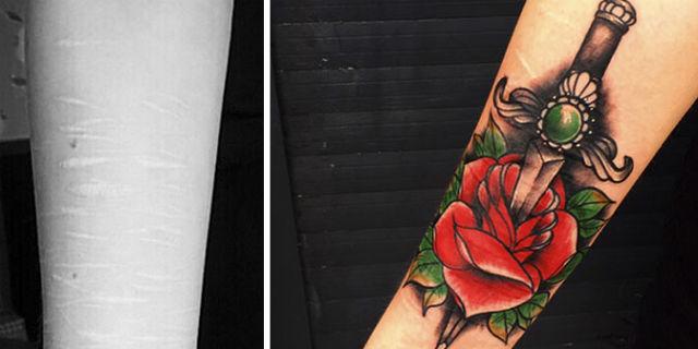 L'artista che copre con i tatuaggi le cicatrici dell'autolesionismo