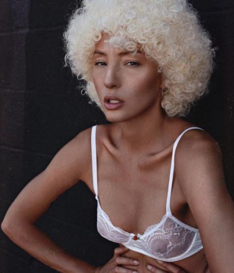 Calva per alopecia, le chiedono di togliersi la parrucca: le lacrime e la forza di Jeana