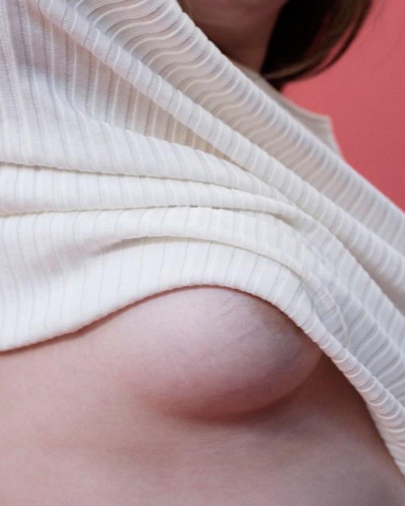 LoveYourLines: 6 donne mostrano e raccontano le loro smagliature