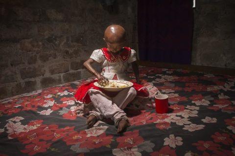 10 anni ma con il corpo di un'anziana: la vita di Nitu, malata di progeria