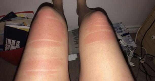 17 persone che hanno avuto l'infelice idea di indossare jeans strappati al sole