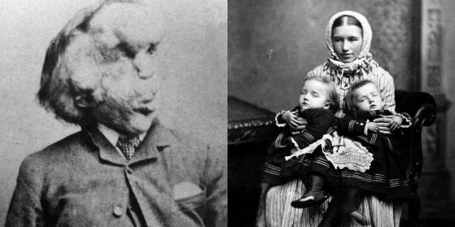 Annie Jones, la triste storia della bambina barbuta