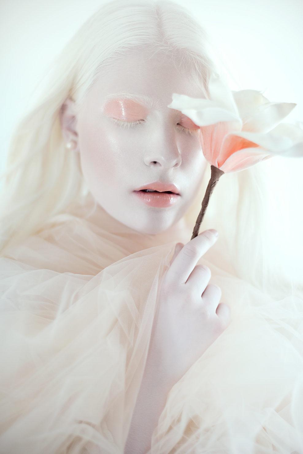 La bellezza oltre gli stereotipi di Matilde e Angelica, sorelle italiane albine