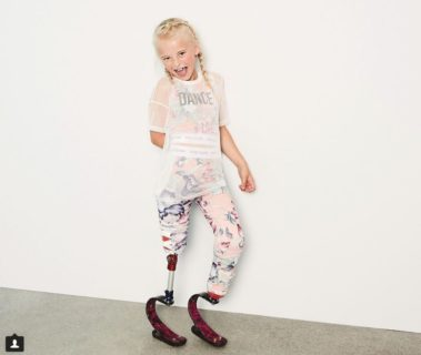 La lezione di vita di Daisy-May Demetre, modella amputata di 9 anni